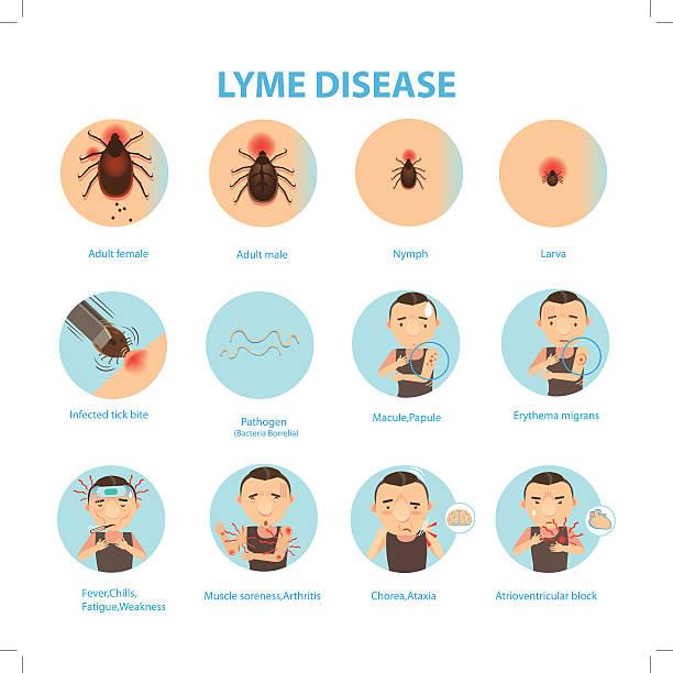 stockillustraties, clipart, cartoons en iconen met lyme disease - larve
