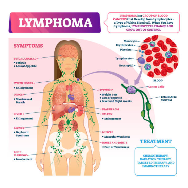 Lymphoma vector illustration. Labeled educational blood cancer type scheme. Lymphoma diagnosis vector illustration. Labeled educational blood cancer type scheme. Disease treatment and symptoms list. Patient with sick blood cell closeup and isolated lymphatic system diagram. white blood cell stock illustrations