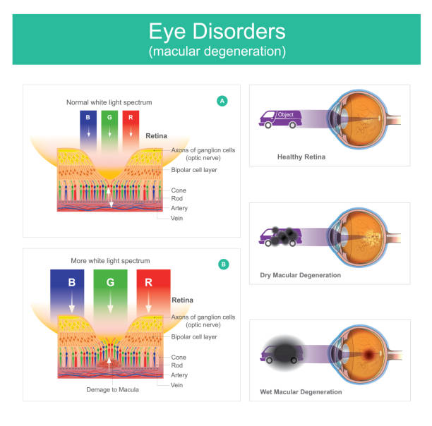 Macular degeneration is a medical condition which may result in blurred or no vision, Early on there are often no symptoms. vector art illustration