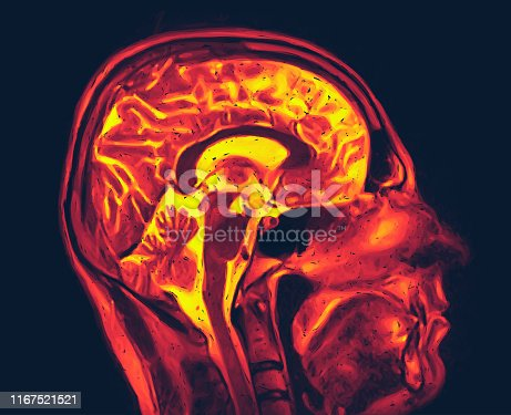 Magnetic resonance imaging of the brain with no visible abnormalities. MRI vector illustration
