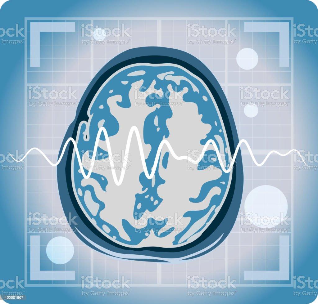 MRI magnetic resonance imaging of the brain vector art illustration