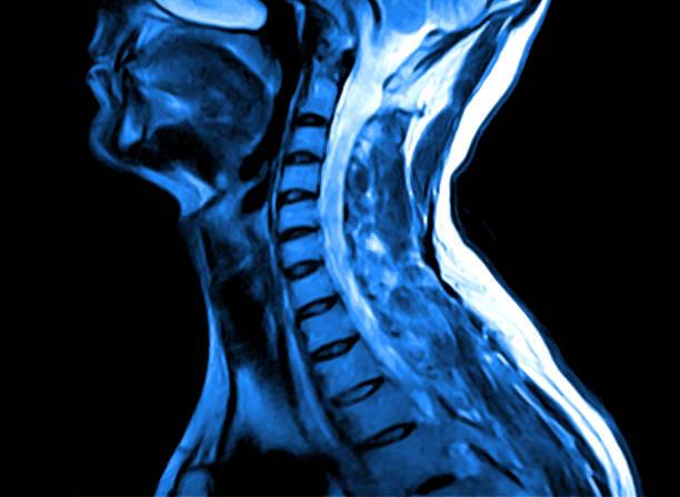 ilustraciones, imágenes clip art, dibujos animados e iconos de stock de resonancia magnética de la columna cervical. - cuello humano