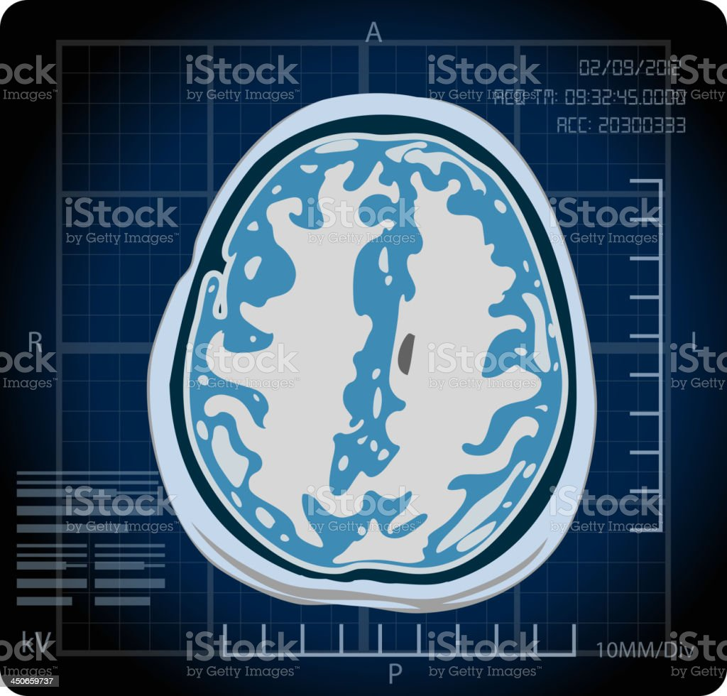 MRI - Magnetic Resonance Imaging vector art illustration