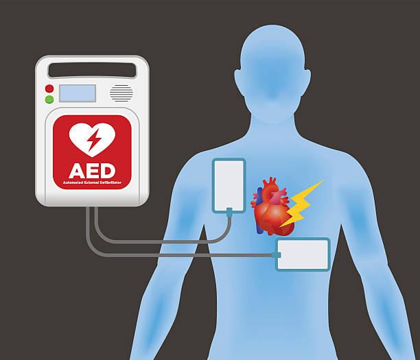 illustrazioni stock, clip art, cartoni animati e icone di tendenza di aed(automated external defibrillator), main machine and electrode pads - elettrodo