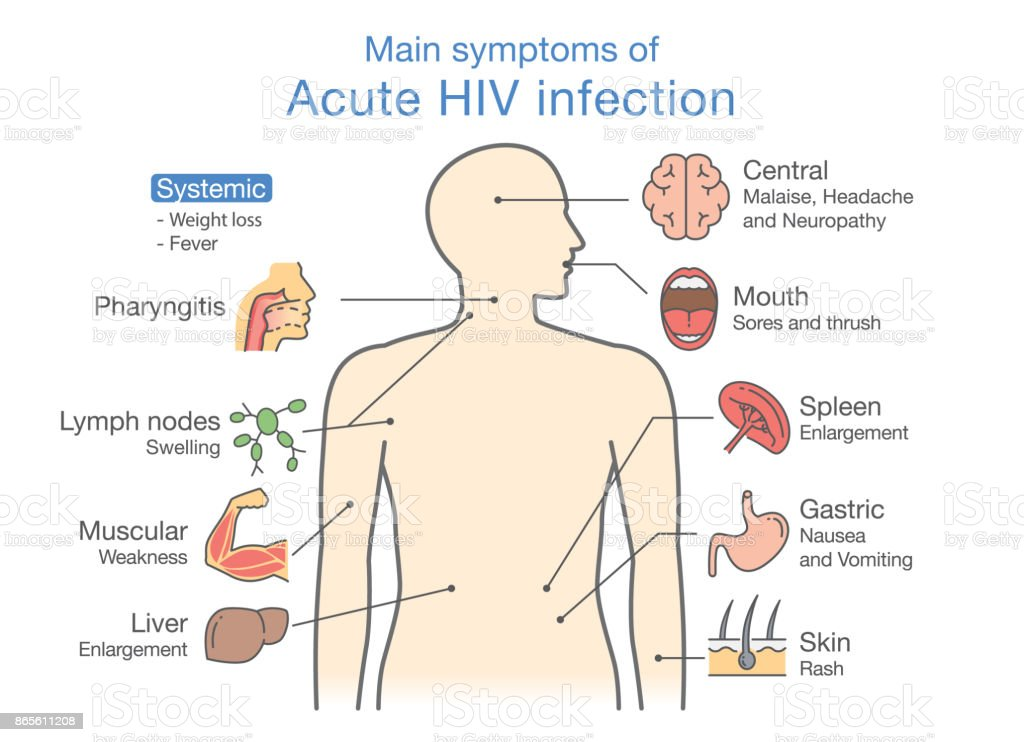 how to get tested for acute hiv