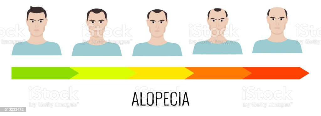 Male alopecia stages set vector art illustration