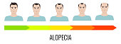 Male alopecia stages set