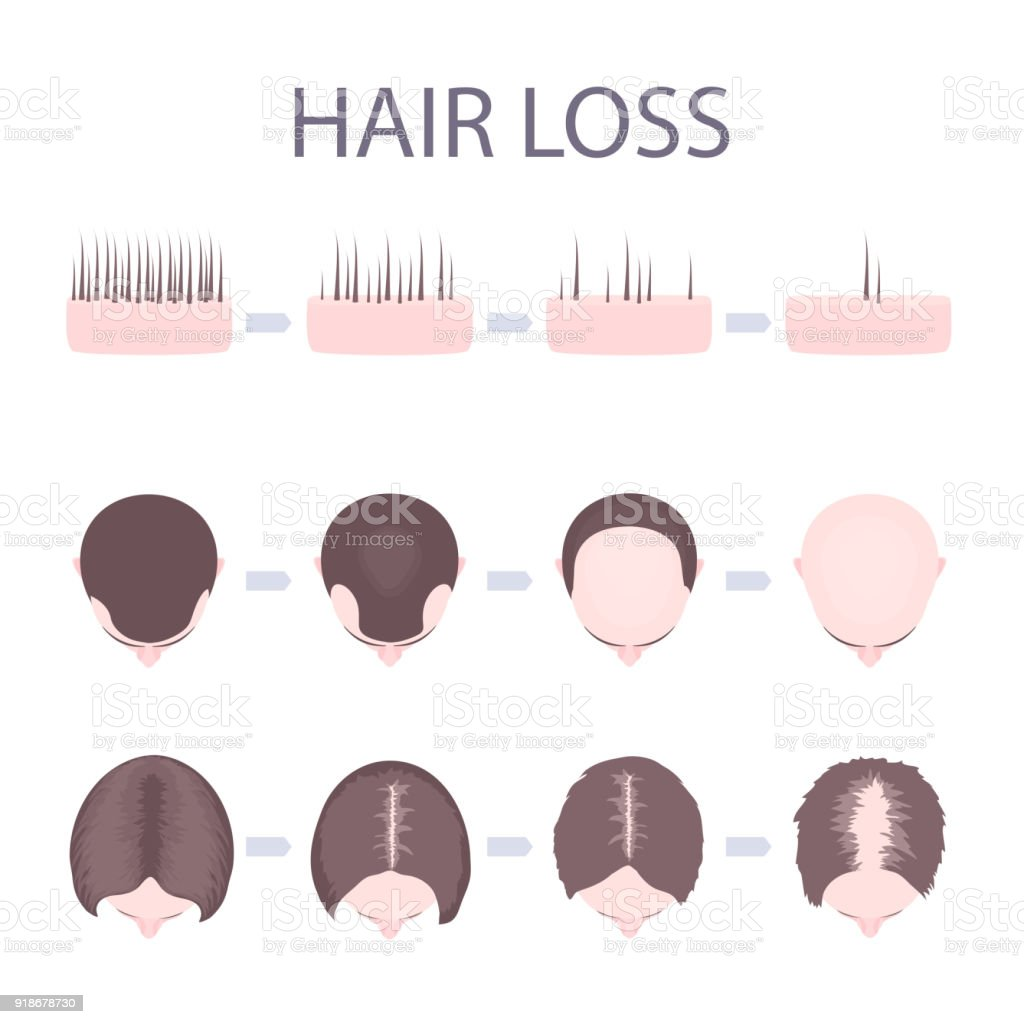 Male and female hair loss vector art illustration