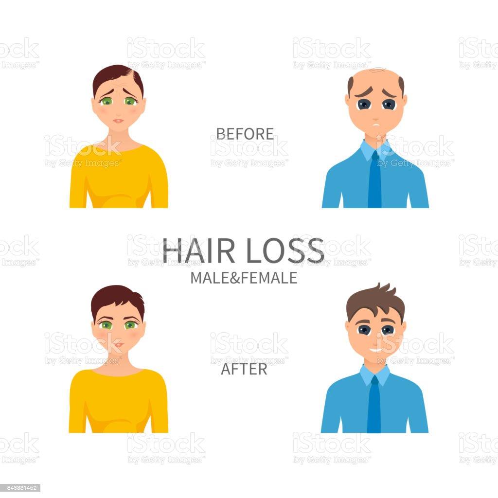 Male and female pattern baldness vector art illustration