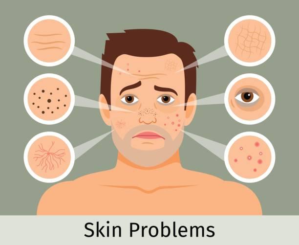 ilustraciones, imágenes clip art, dibujos animados e iconos de stock de problemas de la piel del rostro masculino - dermatología