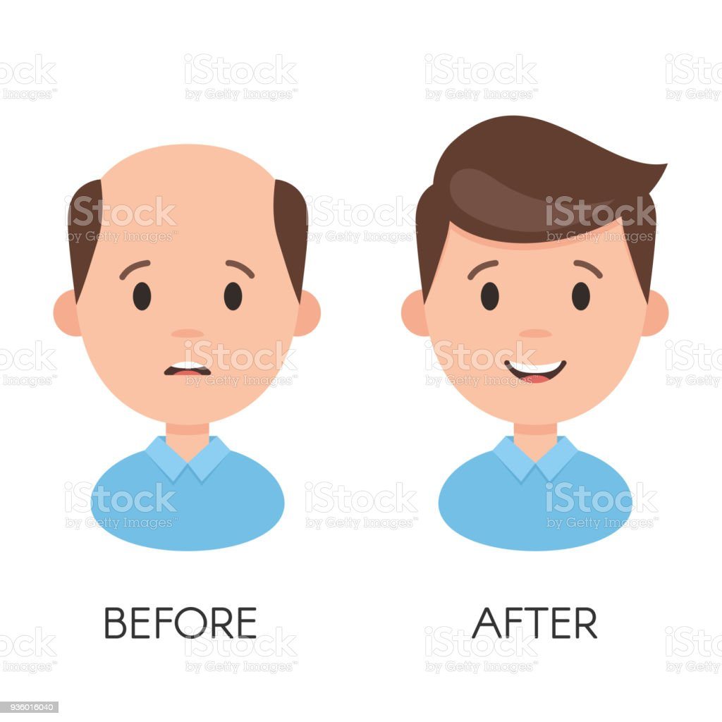 Male hair loss vector art illustration