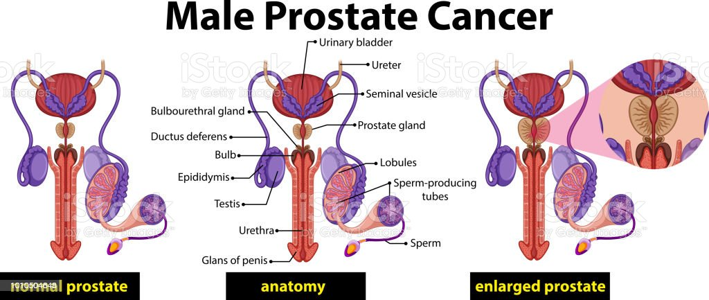 Male Prostate Cancer Diagram Stock Vector Art & More Images of ...