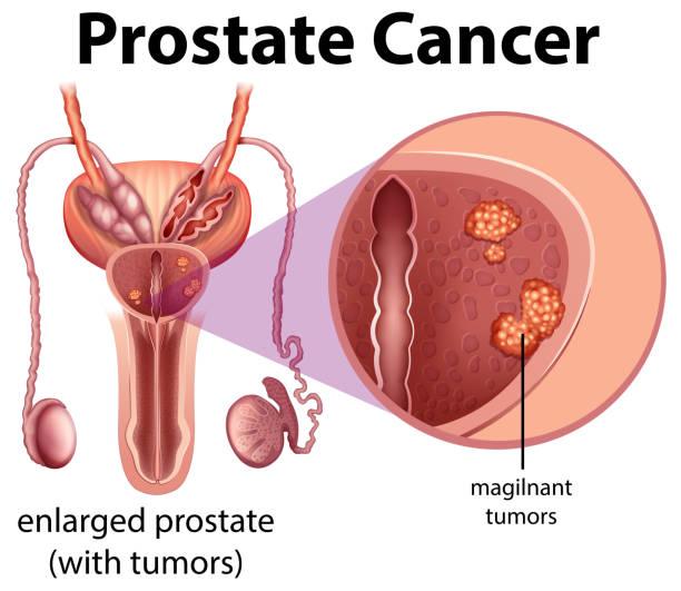 ilustraciones, imágenes clip art, dibujos animados e iconos de stock de diagrama de cáncer de la próstata masculina - cáncer tumor