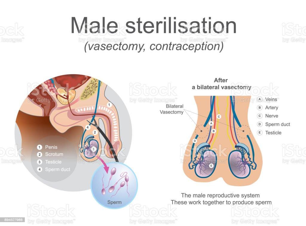 Männliche Sterilisation Vasektomie Stock Vektor Art und mehr Bilder ...