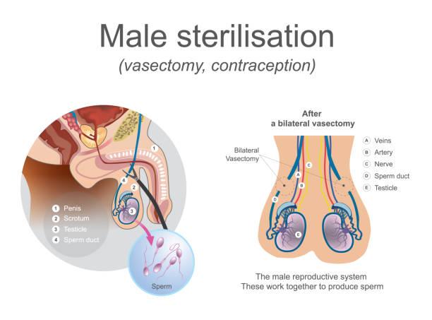 Vasectomie de stérilisation masculine. - Illustration vectorielle