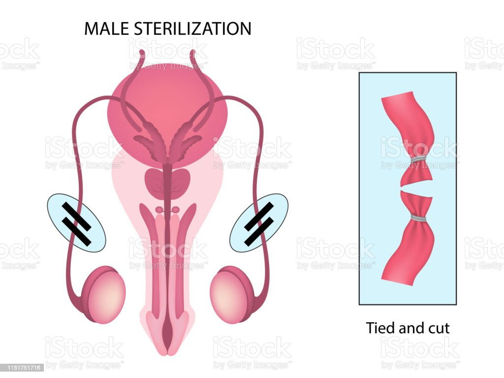 Male Sterilization Stock Illustration - Download Image Now