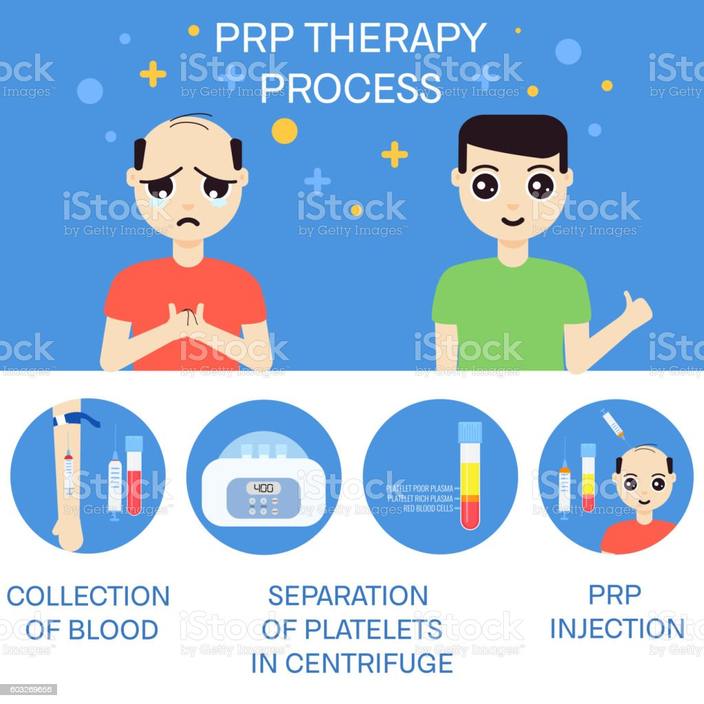 Man before and after RPR therapy vector art illustration