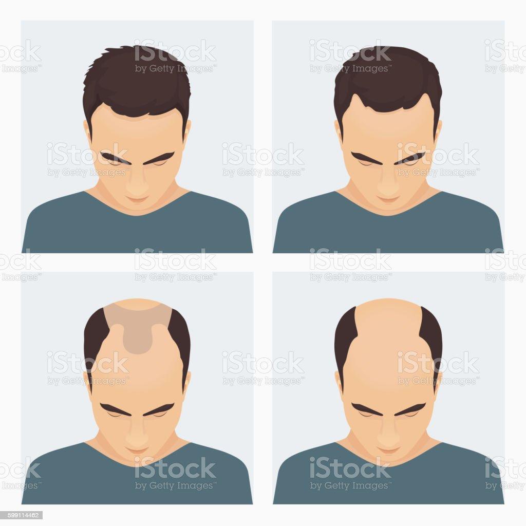 Man hair loss stages vector art illustration