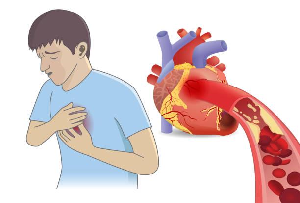 ilustrações de stock, clip art, desenhos animados e ícones de man have chest pain from blood cell can't flow into heart by fatty. - coração fraco