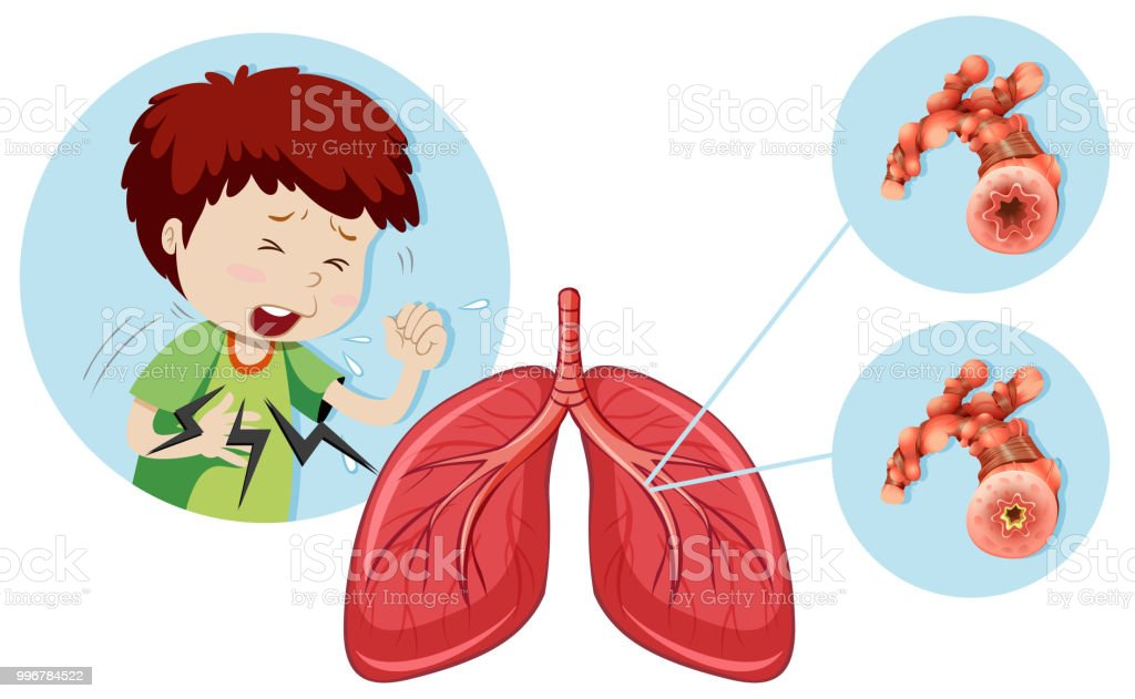 A Man Having Chronic Obstructive Pulmonary Disease vector art illustration