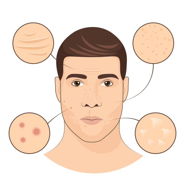 Man portrait with facial treatments. Face skin care vector illustration vector art illustration