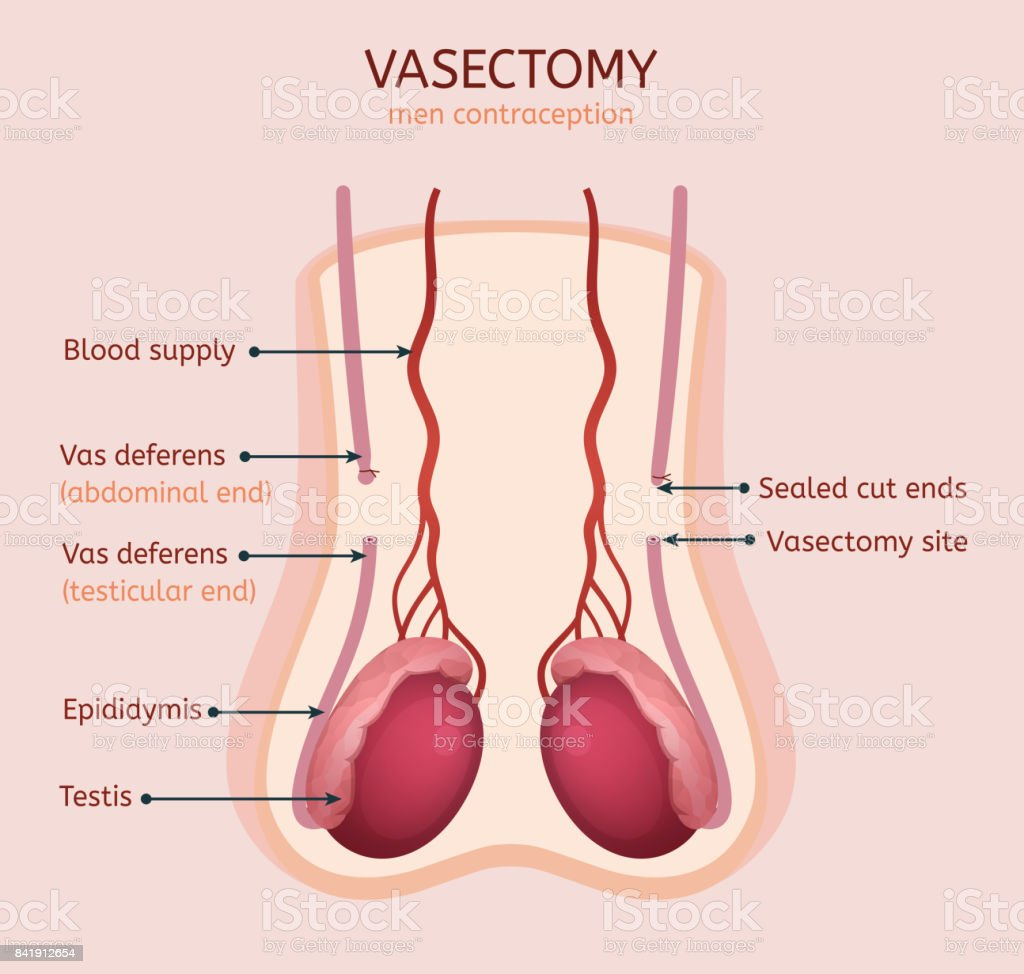 Man vasectomy image vector art illustration