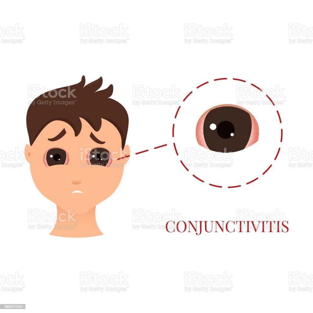 Man with conjunctivitis vector art illustration