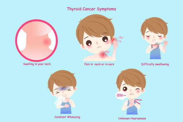 ilustraciones, imágenes clip art, dibujos animados e iconos de stock de hombre con cáncer de tiroides - thyroxine