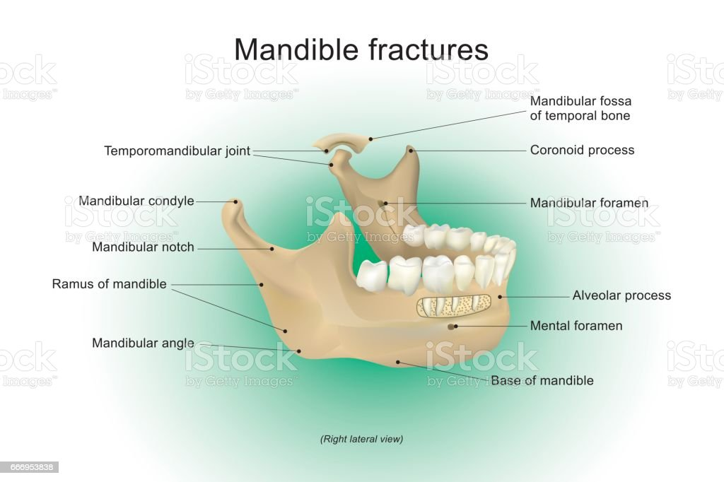 Mandible Fractures Vector Anatomy Human Stock Vector Art More