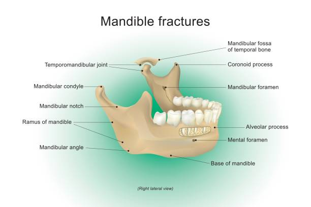 Mandible fractures. vector anatomy human. Mandible fractures is the largest, strongest and lowest bone in the face, Vector design, Arts, Illustration. septum stock illustrations