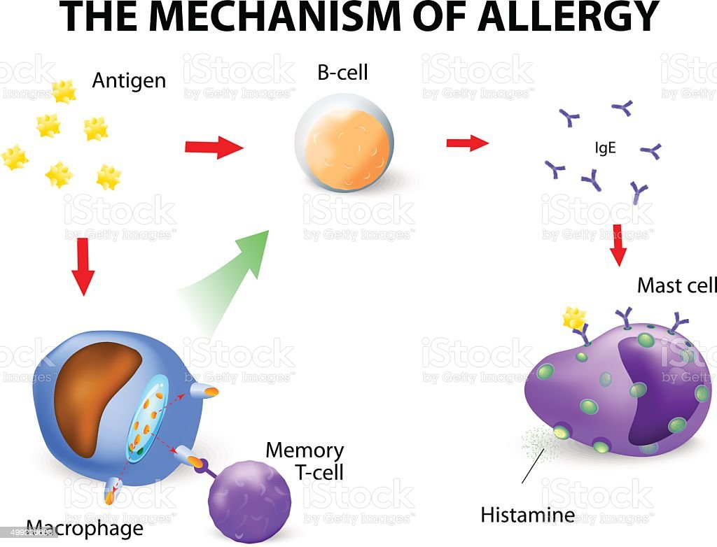 Mechanism of allergy vector art illustration