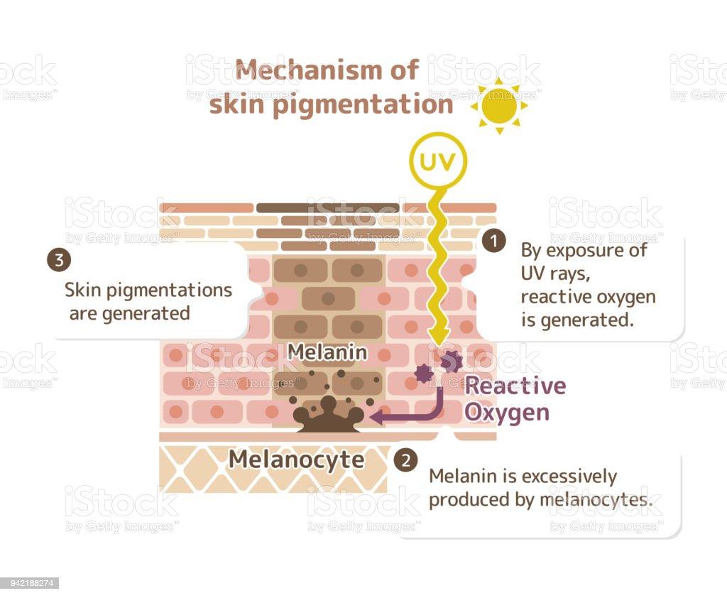 mecanismo de pigmentação da pele / pele mancha ilustração (com explicação) - ilustração de arte em vetor