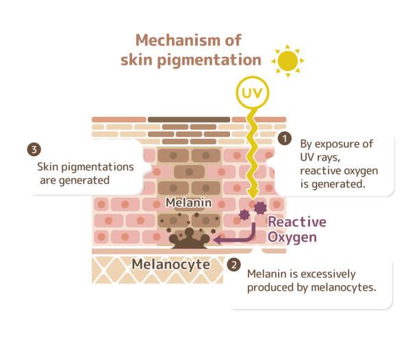 ilustraciones, imágenes clip art, dibujos animados e iconos de stock de mecanismo de la pigmentación de la piel piel ilustración punto (con explicación) - dermatología