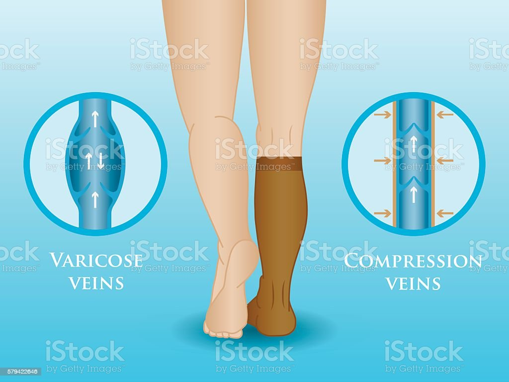 Medical compression hosiery vector art illustration