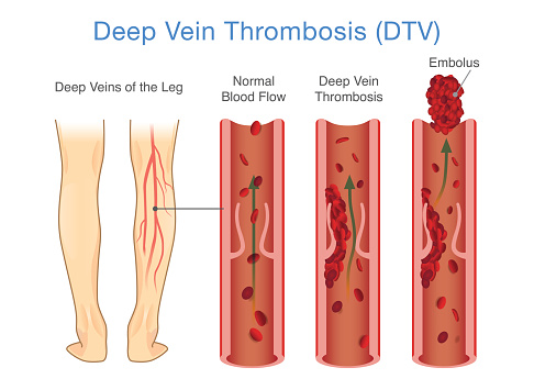 Medical Diagram Of Deep Vein Thrombosis At Leg Area Stock Illustration - Download Image Now
