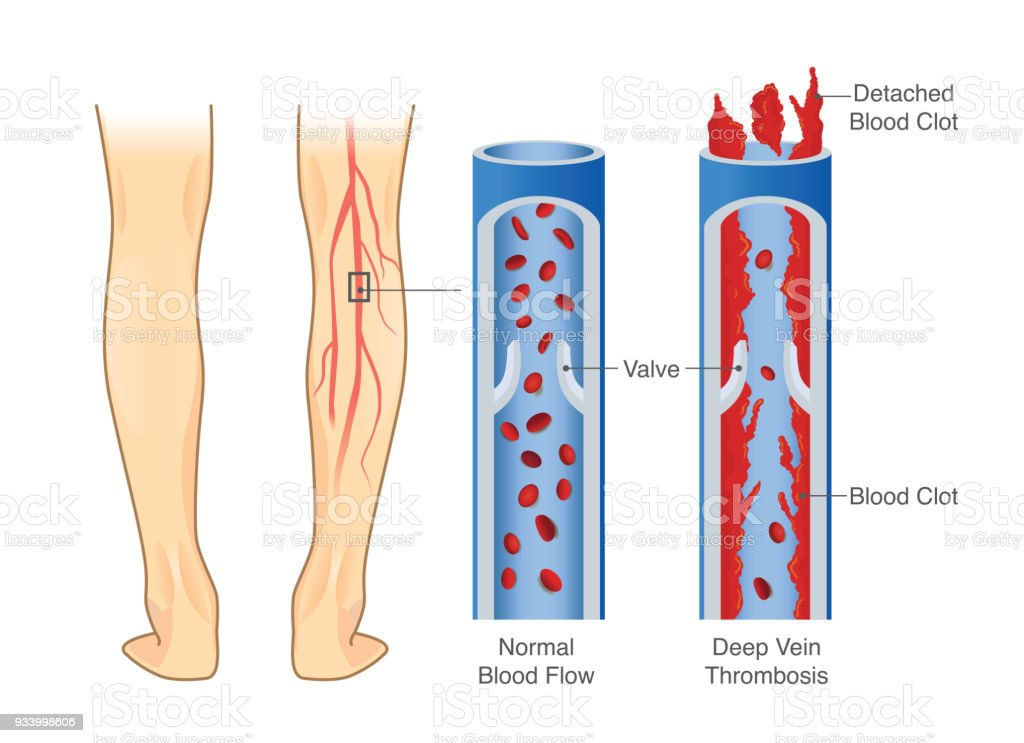 Medical Diagram Of Deep Vein Thrombosis At Leg Area Stock Vector Art ...