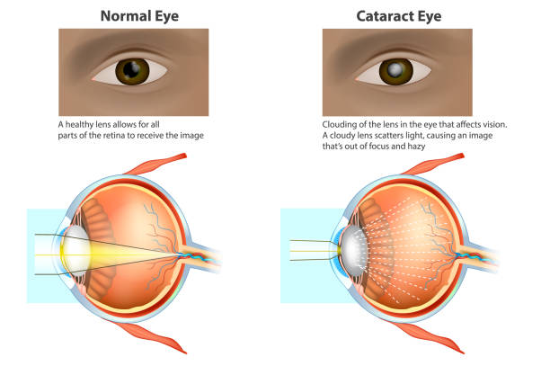 medical illustration of a normal eye and an eye with a cataract. - сетчатка stock illustrations