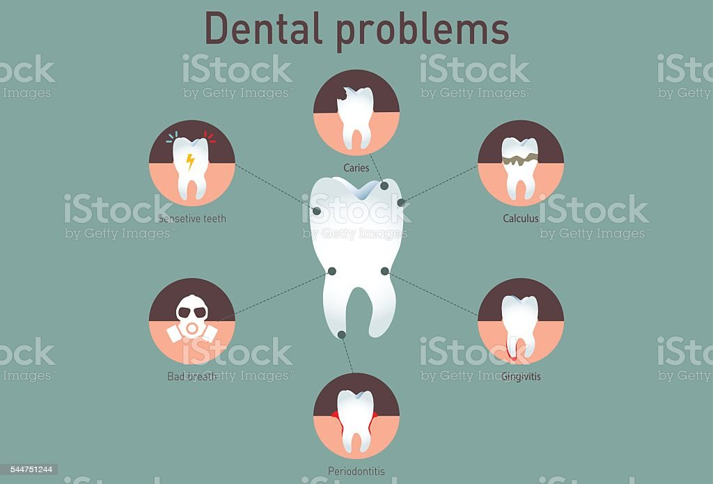 Medical infografics: Dental problems vector art illustration