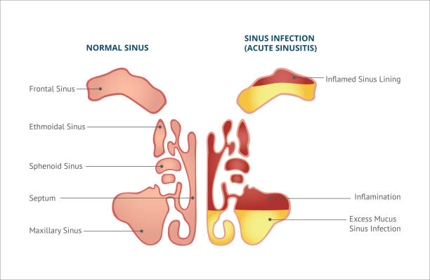 Medical infographic of sinus and human nasal anatomy. Medical infographic of sinus, normal sinus and sinus infection or sinusitis. Isolated vector flat illustration, human nasal anatomy. septum stock illustrations