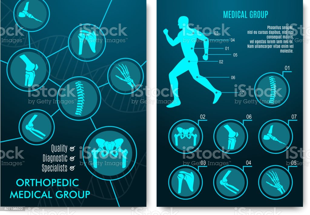 Medical infographic with orthopedic anatomy charts vector art illustration