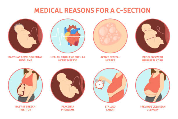 Medical reasons for cesarean delivery vector art illustration