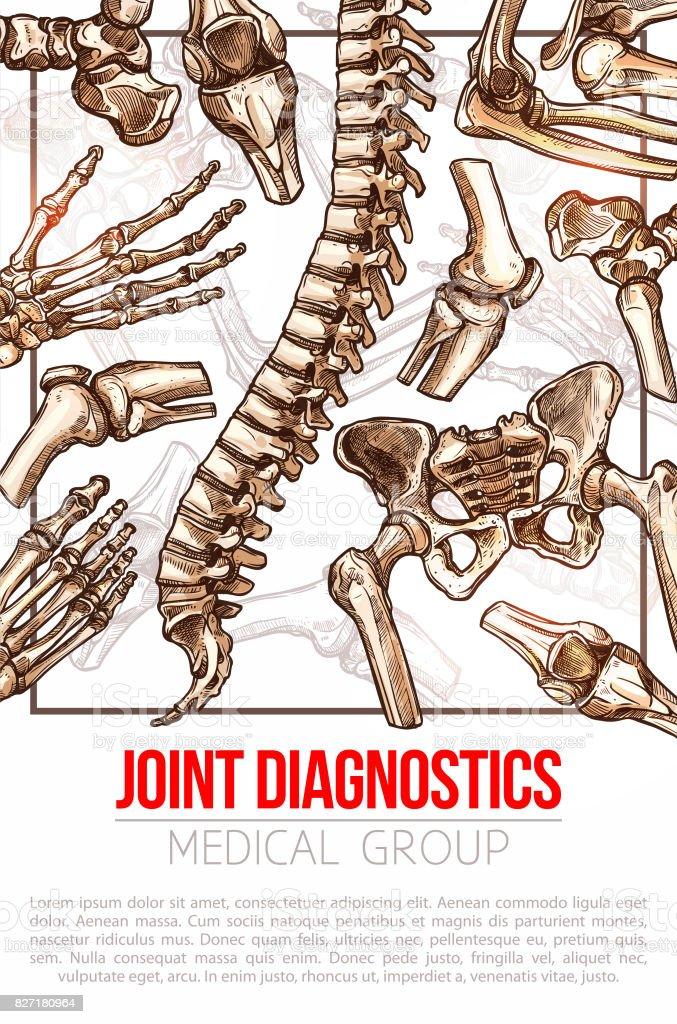 Medizinische Vektor Plakat Für Gemeinsame Diagnose Stock Vektor Art ...