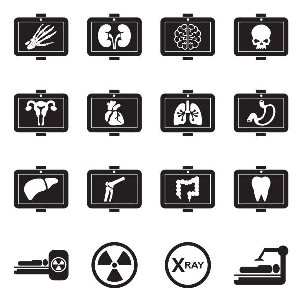 Medical X-Ray Icons. Black Flat Design. Vector Illustration. X-ray, Radiation, Hospital, RTG radiology stock illustrations