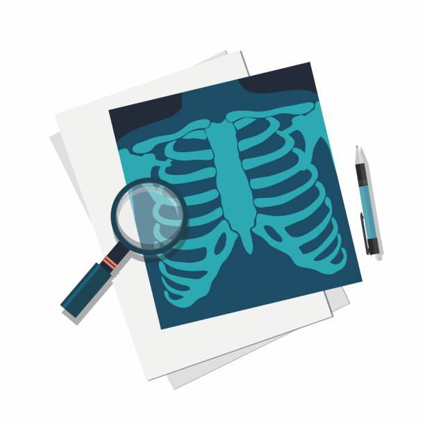 Medicine concept. X-ray lungs, magnifier and pen. Medicine concept. X-ray lungs, magnifier and pen. Vector illustration radiology stock illustrations