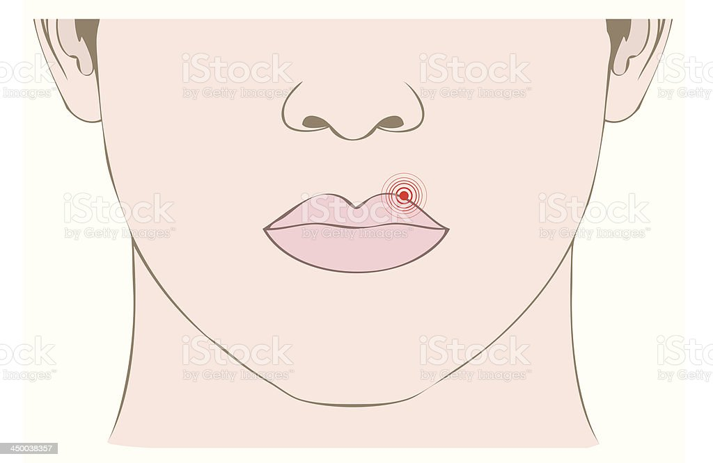 medicine illustration, disease herpes virus on mouth royalty-free medicine illustration disease herpes virus on mouth stock vector art & more images of adult