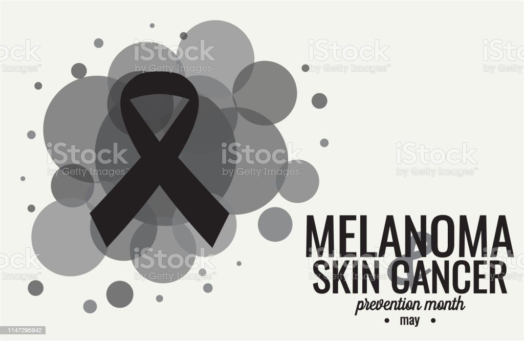 Melanoma And Skin Cancer Stock Illustration Download Image Now Istock