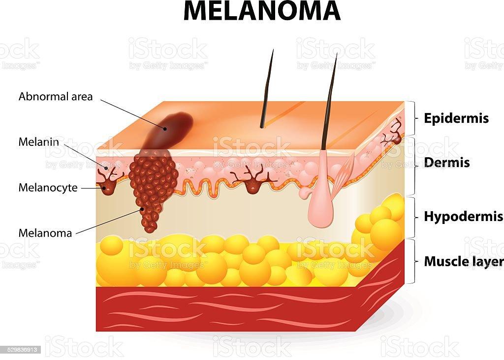 Melanoma or skin cancer vector art illustration