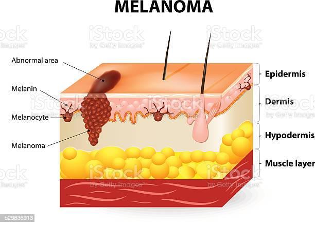 Melanoma Or Skin Cancer Stock Illustration - Download Image Now