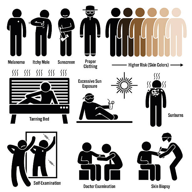 melanoma skin cancer illustrations - cancer patient stock illustrations