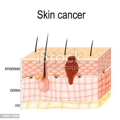melanoma skin cancer stock vector art & more images of ... caterpillar body diagram body diagram skin cancer